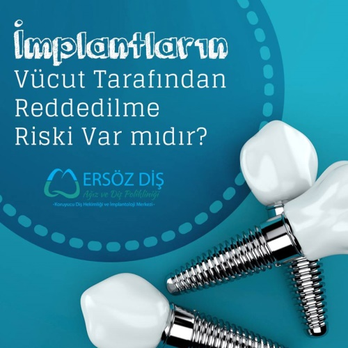 IS THERE A RISK THAT THE DENTAL IMPLANTS MAY BE REJECTED BY THE BODY?