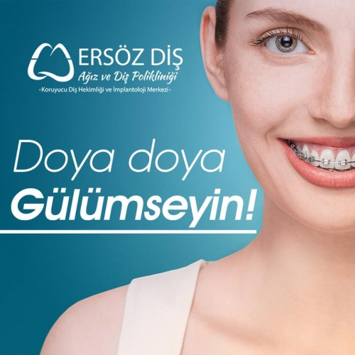 Smile to your heart's content with the physicians of Ersöz dental hospital!
